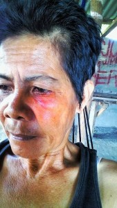 """Florida Sibayan, AMBALA chairperson, was punched in the face and threatened with a firearm by a """"goon"""" working for the solar project. Photo by AMBALA."""